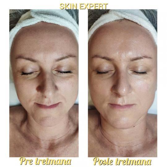 Skin Expert Aesthetic & Laser centar #beograd Mezoterapija lica Mezoterapija bez igle / Mezoporacija