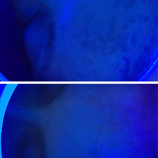 Look at me #beograd Tretman lica Nomelano nakon prvog tretmana