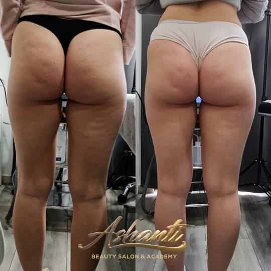 Ashanti Beauty Salon & Academy #beograd Tretmani tela Ultrazvučna kavitacija + vakum sa bipolarnim