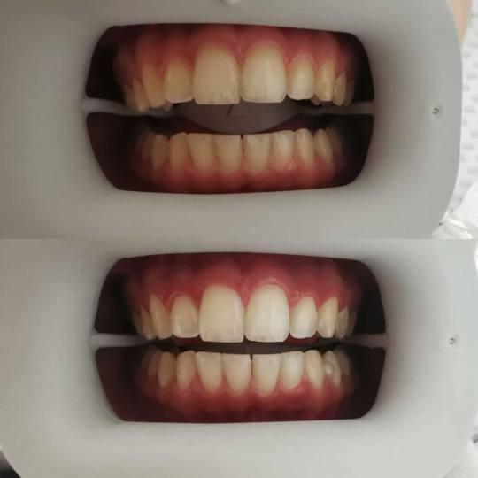 D&D Beauty Center #beograd Zubi Lasersko izbeljivanje zuba Wellness