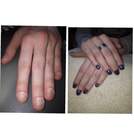 Bibi beauty centar #beograd Manikir Ojačavanje prirodnih noktiju gelom pre i posle - ojacanja nokti