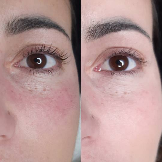 Tag Beauty Bar #beograd Minival Lash lift + botox trepavica Lash lift bez farbanja