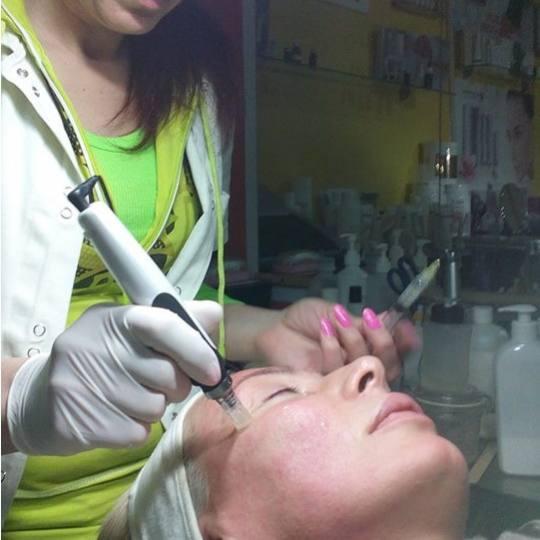 Mon cheri Anđela #beograd Dermaroler i dermapen Dermapen tretman lica