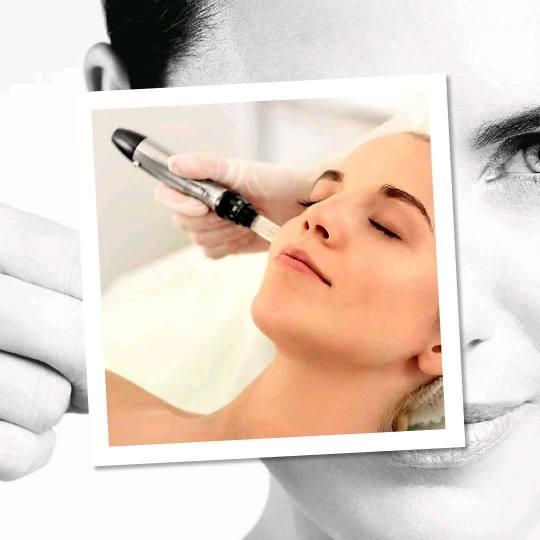 Freya #beograd Mezoterapija lica Mezoterapija dermapenom protiv hiperpigmentacije